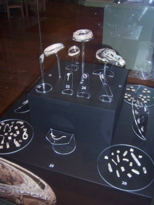 Figure 4. Silverdale Hoard as displayed at Lancaster City Museum (Image copyright: F. Morrissey).