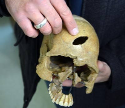 Figure 3: A reconstructed skull recovered from Ofnet Cave, showing distinctively shaped bludgeon wound.  (Image:  Ludwig-Maximilians-Universität, München)