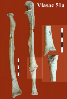Figure 2: The possible parry fracture from Vlasac, right radius and ulna shown (image: Roksandic 2006).