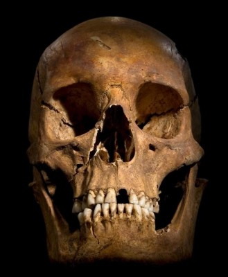Figure 9: The skull of Richard III, showing some of the evidence of the weapon trauma inflicted during the battle (Buckley et al. 201a, 14-15).